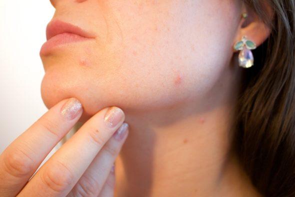 肌荒れにおすすめ化粧水
